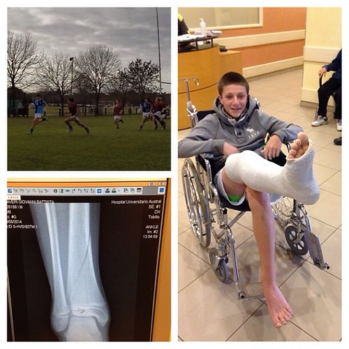 Linda fractura de tibia. #rugby #brokenbone