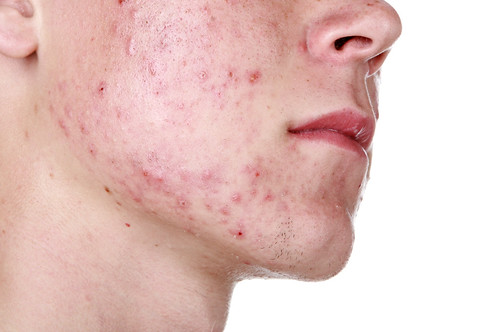 Acne Through the Ages: Young Adult Acne