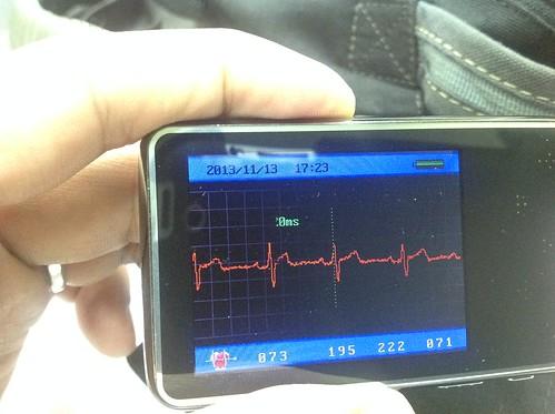 心電圖機2