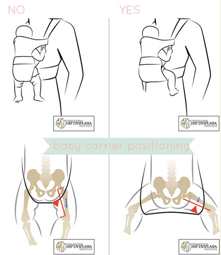 Why it is important to support a babies hips/legs during babywearing. Read what not to use and what to use when it comes to babywearing.