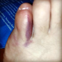 Busted toe