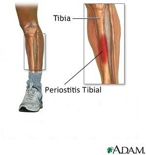 Periostitis Tibial