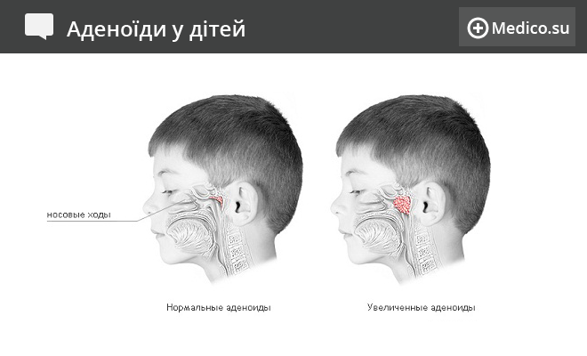 Аденоїди у дітей: симптоми, лікування, операції з видалення