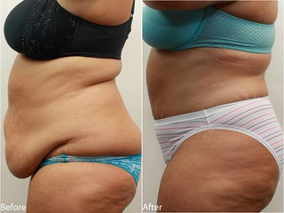 Dr. Darm, Tummy Tuck Before and After - TV Slide3
