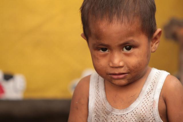 help starving children