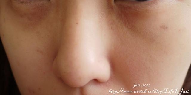 紅寶石雷射,除斑,雷射除斑,淡斑,汗斑,雀斑,斑,老人斑,除刺青