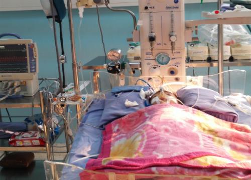phẫu thuật dị tật tim bẩm sinh