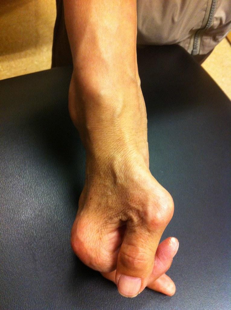 gouty hand arthritis