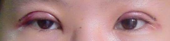 變身|雙眼皮日記♥.術後第二天,最腫脹的時候。