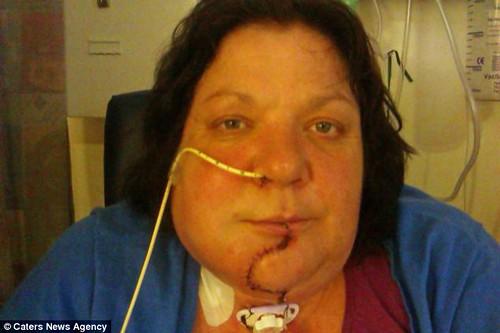 После операции Лиз Хеллинг провела в больнице еще месяц, научившись заново есть и говорить. Также она прошла курс химиотерапии и радиотерапии.
