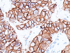 Carcinoma ductal infiltrante (Her-2)