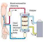 New York Hospitals Set to Move Dialysis Care to Private Chain, Despite Track Record