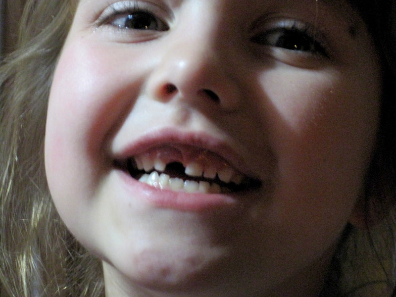 front tooth 1 (2)