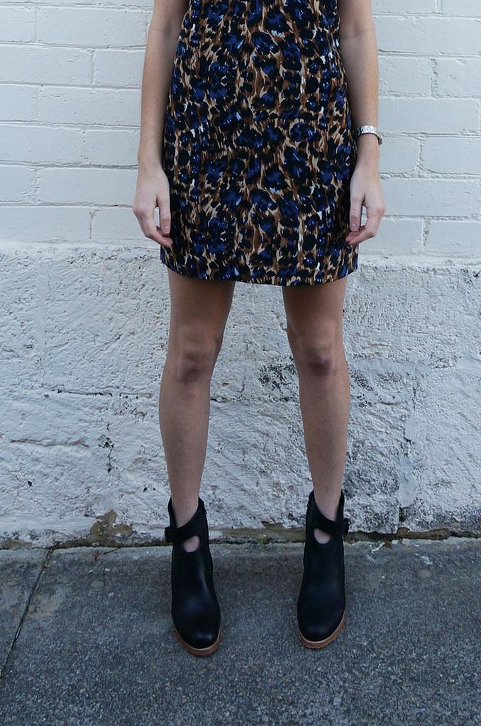 bared-legs