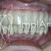 implante dentario provisoria