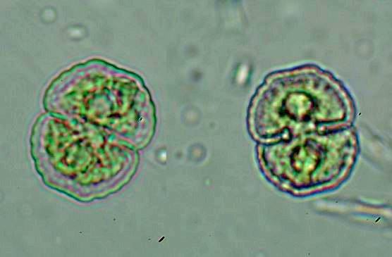 鼓藻 (Cosmarium)。拍攝者:張桂祥