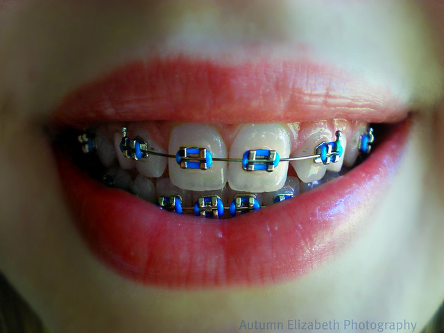 Braces Colour Selector Braces Colors Selector Games