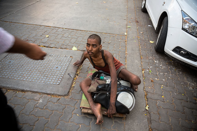 A disfigured beggar in Mumbai, India.