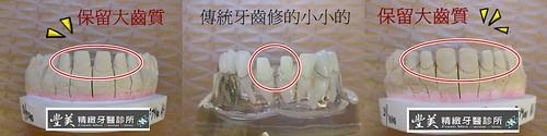 台中豐美牙醫診所-製作牙齒精細表現3