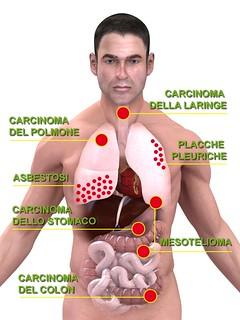 malattie-da-esposizione-amianto