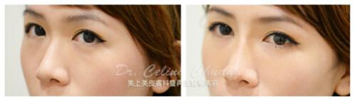 美上美醫學美容莊盈彥醫師使用玻尿酸,打造漂亮完美的鼻形