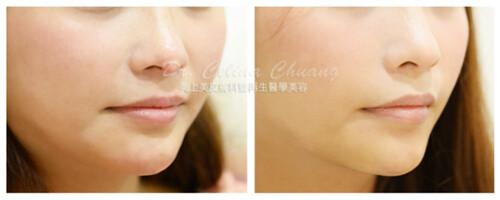 美上美醫學美容莊盈彥醫師提供玻尿酸、晶亮瓷微整形。