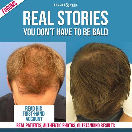 hair-transplant-real-story-fb
