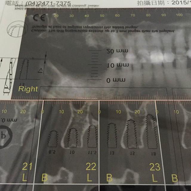 植牙停看聽!台中權泓牙醫植牙諮詢經驗談 (5)