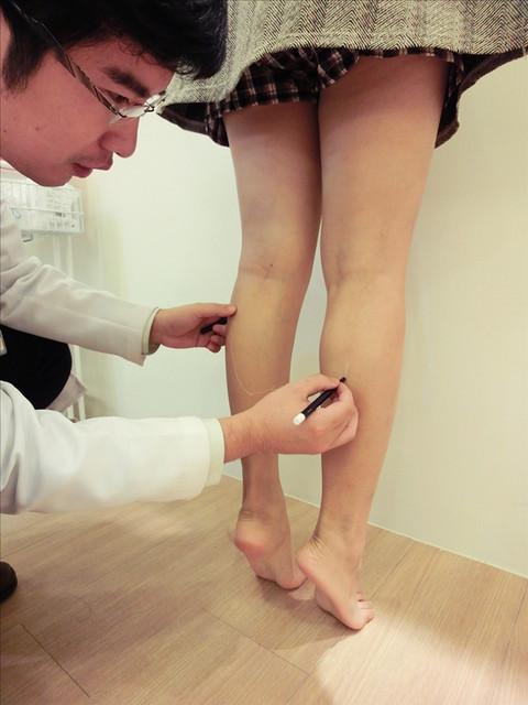 肉毒桿菌,肉毒桿菌副作用,肉毒桿菌價格,瘦小腿,如何瘦小腿,瘦小腿最快速,瘦小腿肌肉,瘦小腿的方法,蘿蔔腿