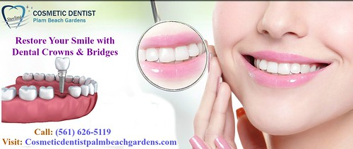 Restore Your Smile with Dental Crowns & Bridges