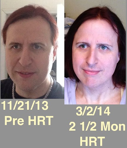 transitioning over 40 hrt male to female mtf discussions