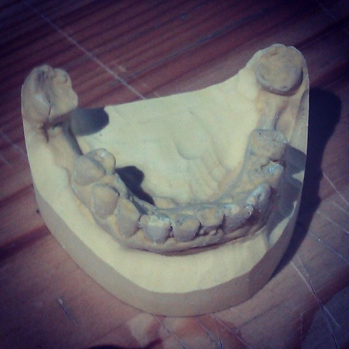 My chipped teeth mold :-P