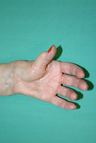 9212424354 dac008f10e Tips On How To Get Rid Of Arthritis