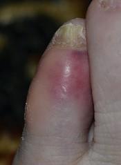 Stubbed toe bruising