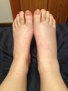 Swollen foot, day 2