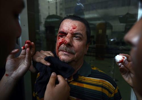 VENEZUELA-OPPOSITION-DEMO