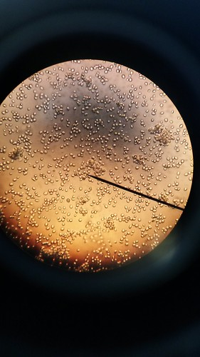 Yeast Cells Under the Microscope | by BlueShift 12