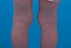 hand(0.0), nose(0.0), chin(0.0), arm(0.0), face(0.0), finger(0.0), abdomen(0.0), cheek(0.0), human body(0.0), human leg(1.0), skin(1.0), limb(1.0), leg(1.0), thigh(1.0), organ(1.0),