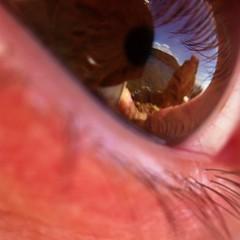 View reflection on my eye (heybeliada)