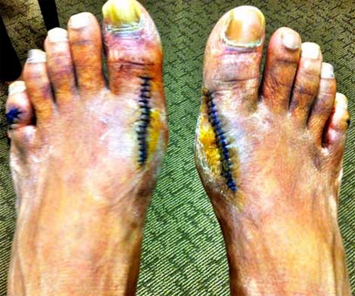 Slim-Thug-Gets-Bunion-Surgery