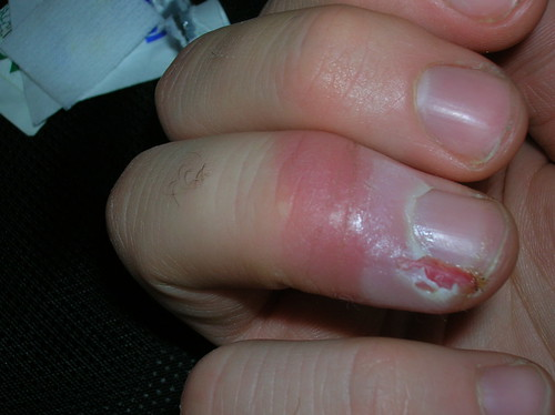 An infected finger travel injury
