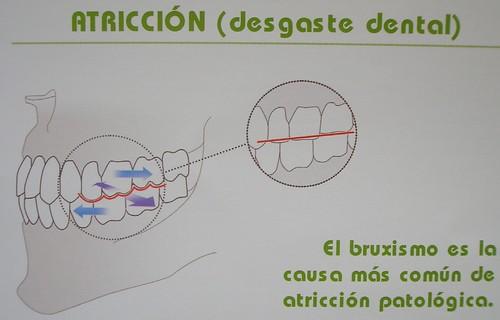 Atricción (desgaste dental)