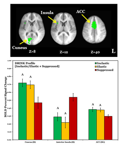 This image shows the fMRI results and charts related to the research.