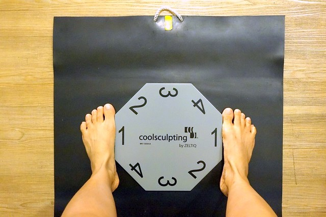 Coolsculpting in Kuala Lumpur - Clique Clinic, PJ - REVIEW-035