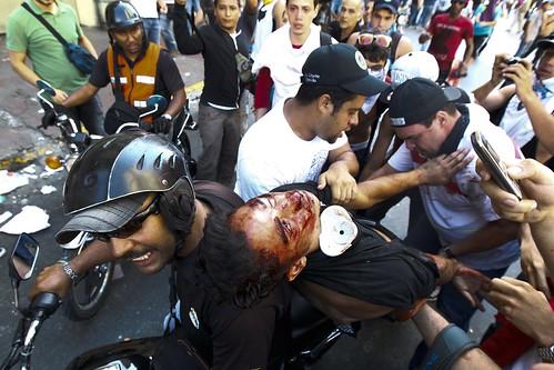 VENEZUELA-OPPOSITION/DEATH