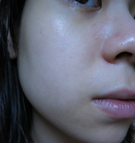 台中自然美大墩店-NB-1美御妍系列32未敷臉前