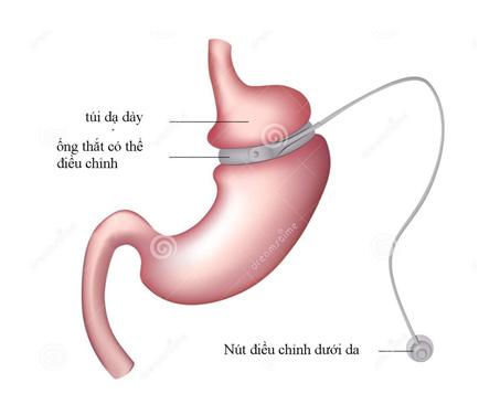 Phẫu thuật thắt dạ dày giúp kiểm soát đường huyết ở bệnh nhân tiểu đường typ2