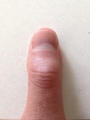 My thumb
