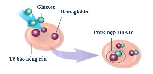 HbA1c trong chẩn đoán và điều trị biến chứng tiểu đường 1