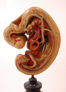 10mm Embryo Dissected
